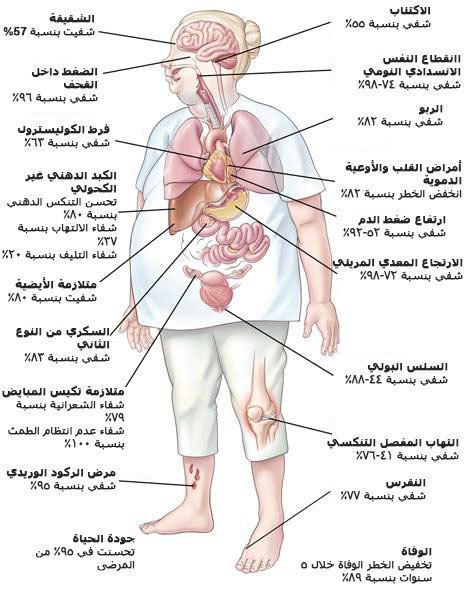 فوائد انقاص الوزن