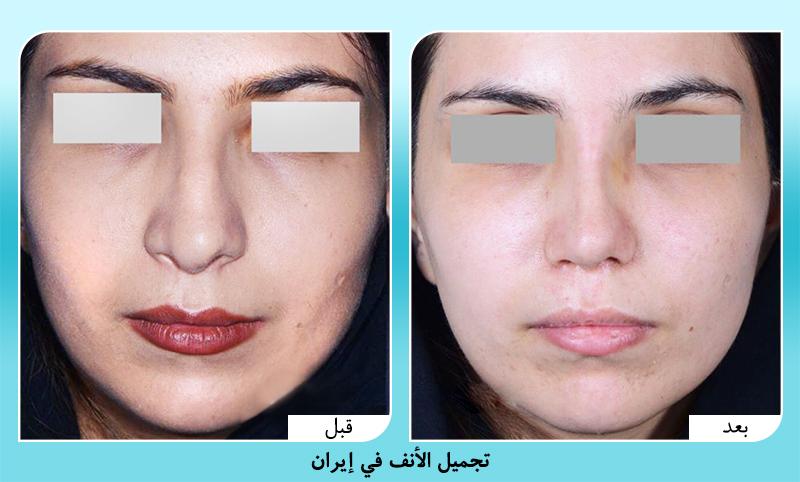 صور قبل وبعد تجميل الانف في ايران الدكتور أجدري