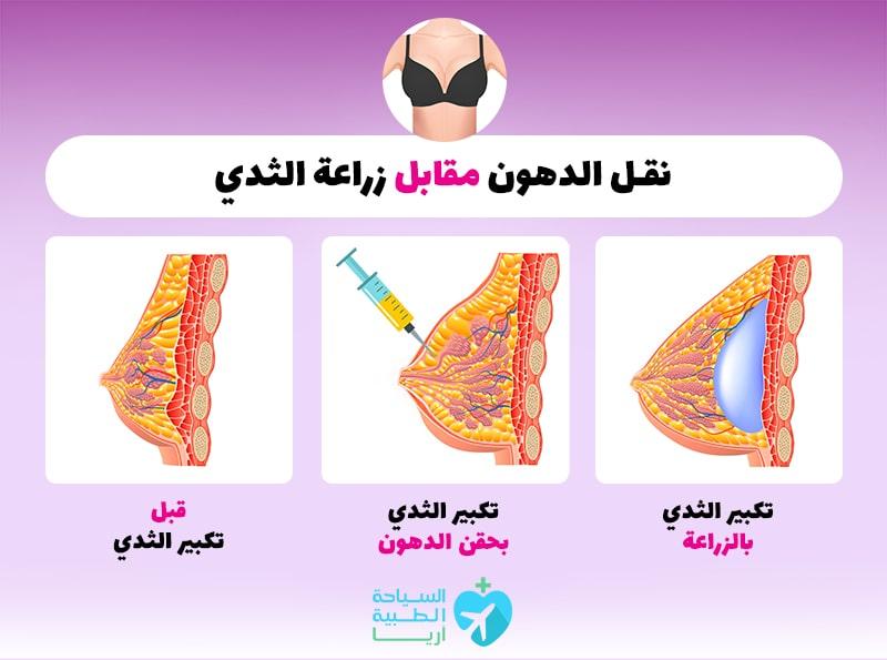 الاختلافات بين نقل الدهون وزراعة الثدي