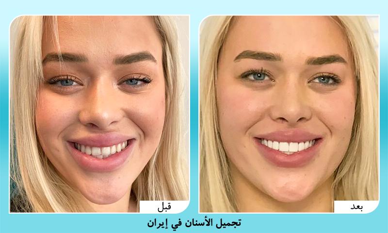 قبل وبعد تجميل الاسنان في ايران د. سامه كشاورزيان