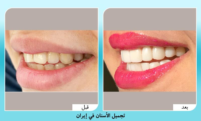 قبل وبعد تجميل الاسنان في ايران د. كشاورزيان