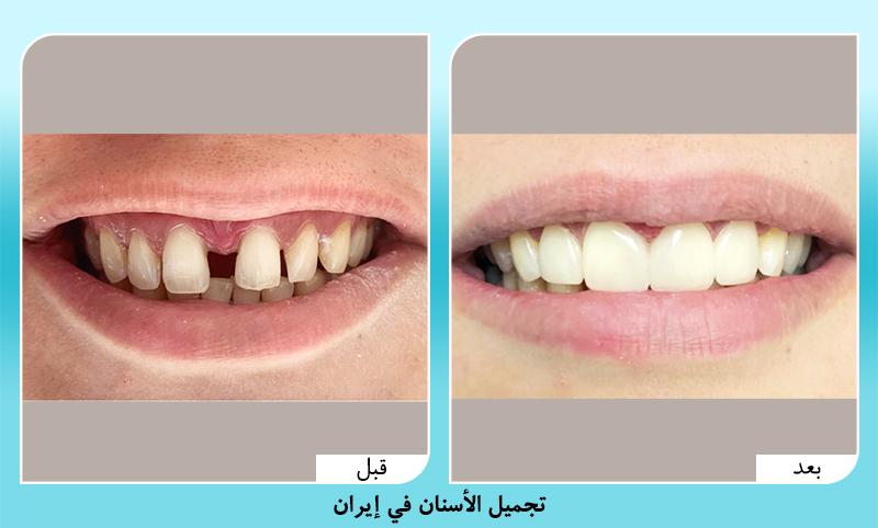 قبل وبعد تجميل الاسنان في ايران آريا مدتور
