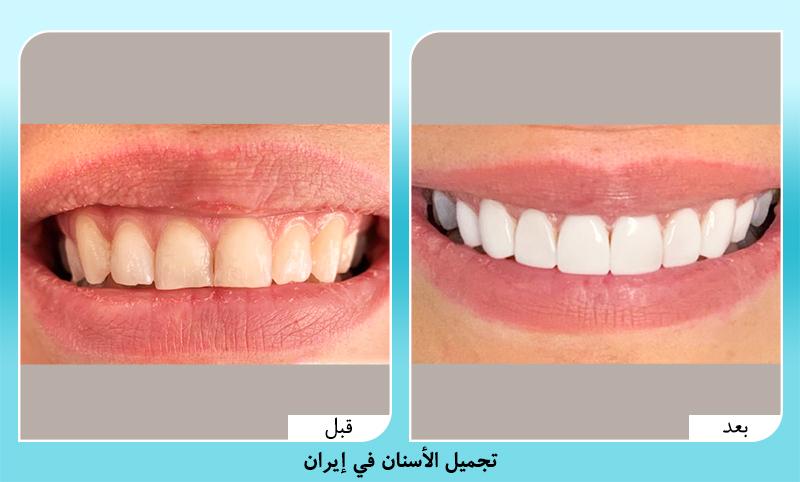 قبل وبعد تجميل الاسنان في ايران الدكتورة كشاورزيان