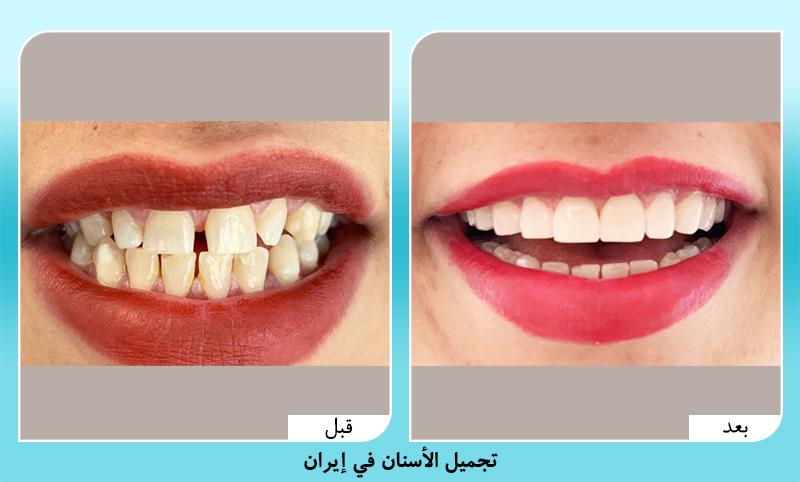 قبل وبعد تجميل الاسنان في ايران الدكتورة سامه كشاورزيان