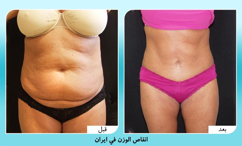 انقاص الوزن في ايران الدكتور مجيد رضواني