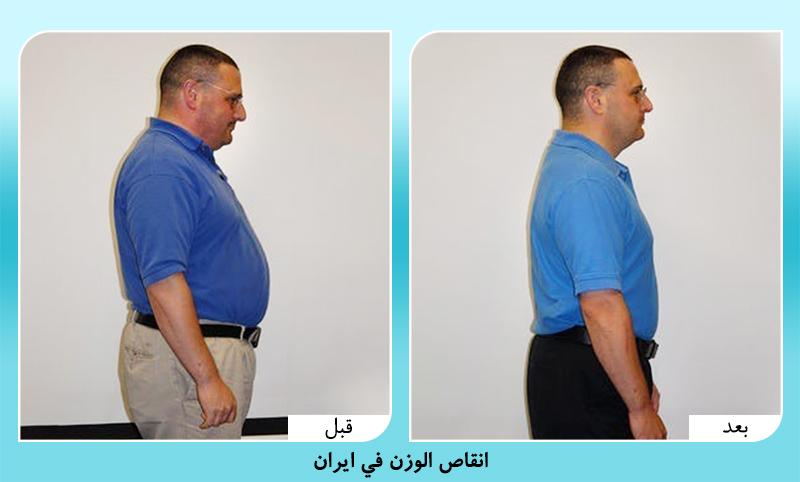 الدكتور مجيد رضواني انقاص الوزن في ايران