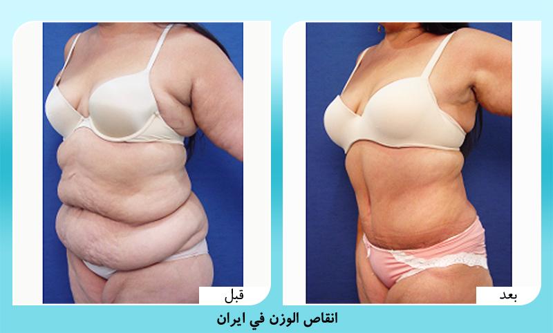 الدكتور مجيد رضواني عملية انقاص الوزن في ايران