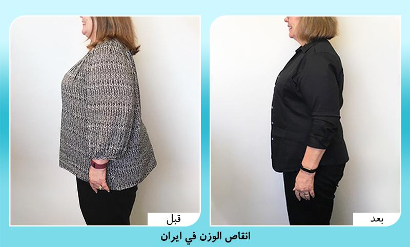 الدكتور مجيد رضواني جراحة انقاص الوزن في ايران