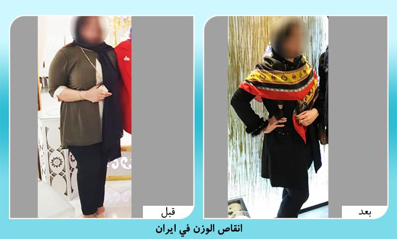 قبل وبعد انقاص الوزن في ايران الدكتور رضواني