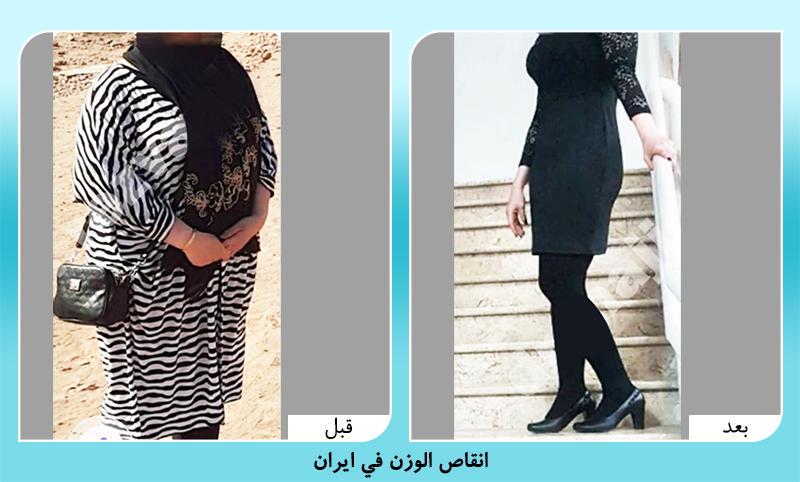 الدكتور رضواني قبل وبعد انقاص الوزن في ايران