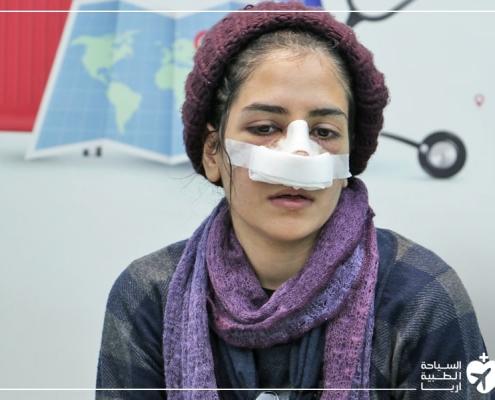 شابة عراقية خاضت عملية تجميل الانف في ايران