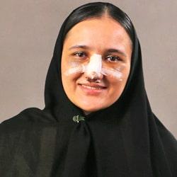 تجربة تجميل الانف في ايران لشابة من طاجيكستان