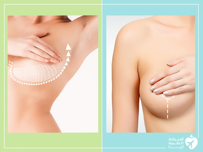 زراعة الثدي أم شد الثدي