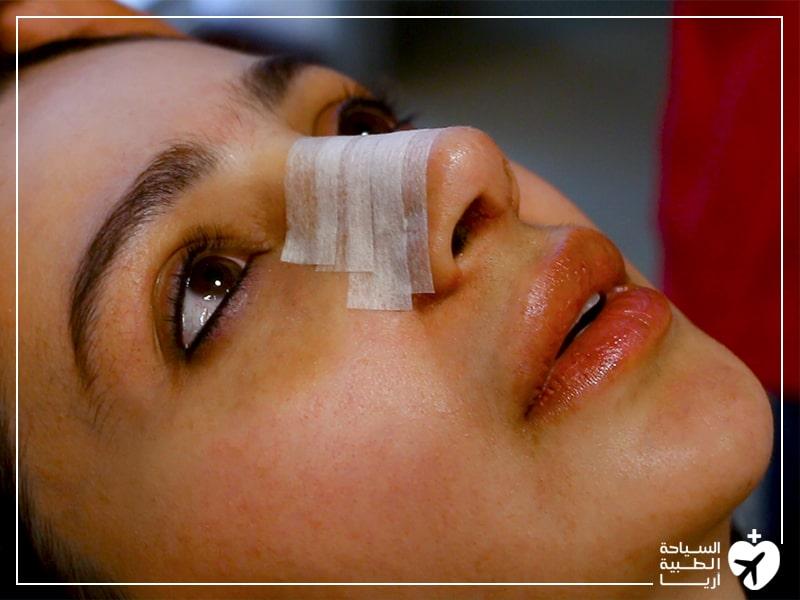 كيف أضع اللاصق على أنفي بعد عملية الانف