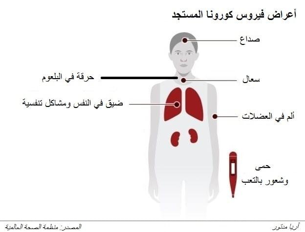 أعراض فيروس كورونا المستجد (كوفيد 19).
