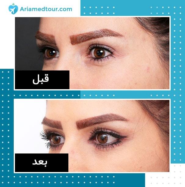قبل وبعد عملية عيون القطط في ايران