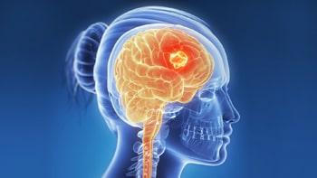 علاج سرطان الدماغ في ايران