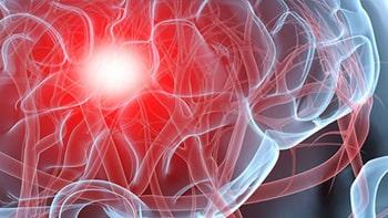 جراحة أورام الدماغ في ايران