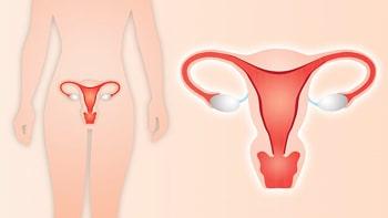 علاج سرطان عنق الرحم في ايران