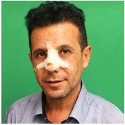 تجربة تجميل الانف اللحمي في ايران مع د. بيمان بورومند