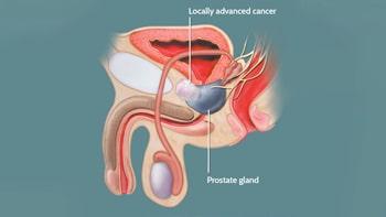 علاج سرطان البروستات في ايران