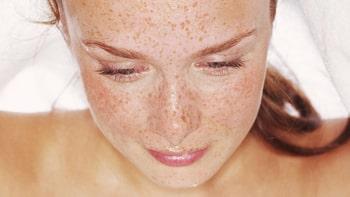 علاج سرطان الجلد في ايران