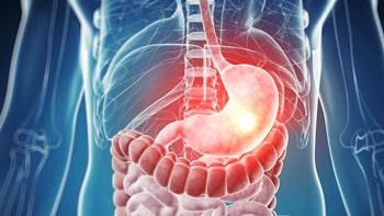 علاج سرطان المعدة في ايران