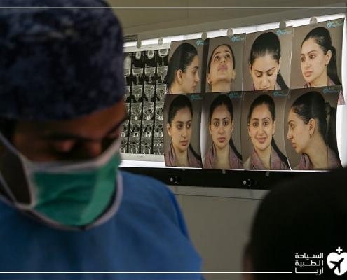خلال عملية ترميم الانف في ايران