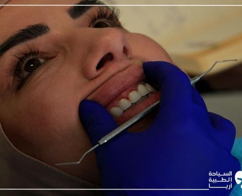 قبل تركيب تيجان الاسنان في ايران