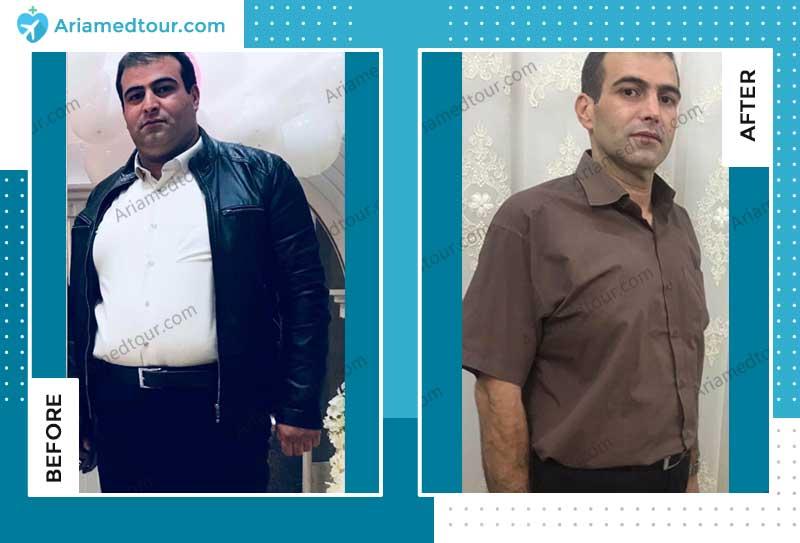جراحة انقاص الوزن في ايران مع د. شهريار عزيزي