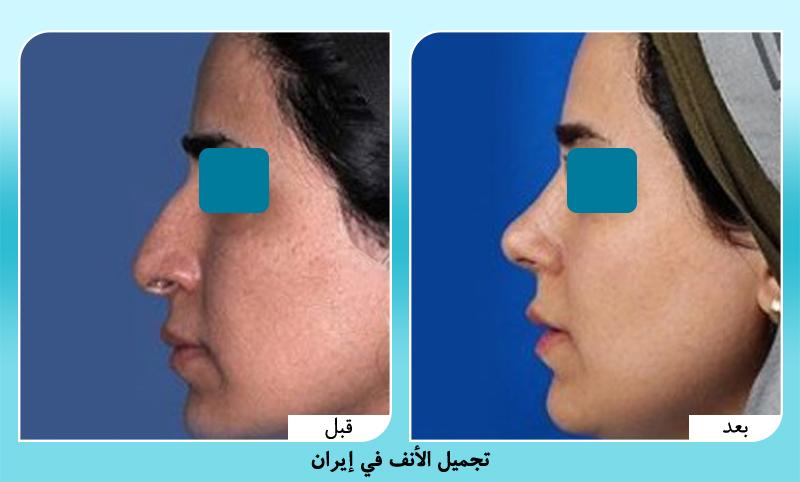 صور قبل وبعد عملية تجميل الانف في ايران مع د. حسناني