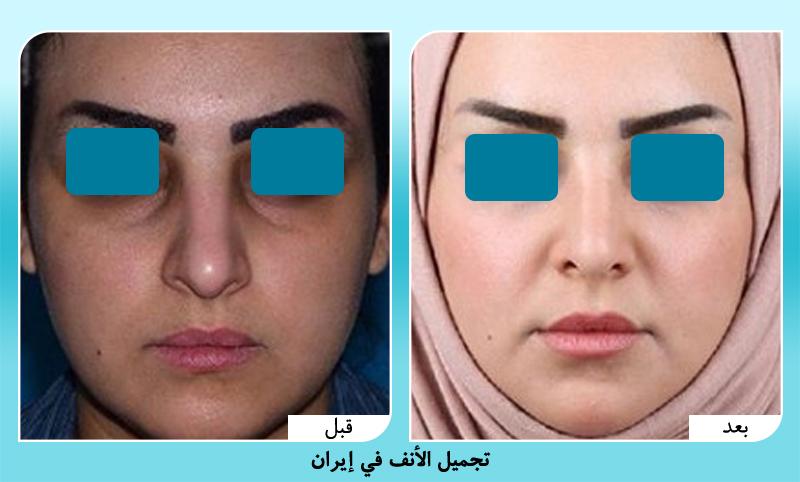 نموذج قبل وبعد عملية تجميل الانف في ايران مع د. حسناني