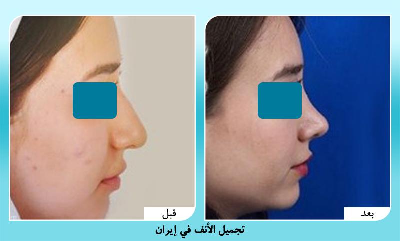 قبل وبعد عملية تجميل الانف مع د. حميد رضا حسناني