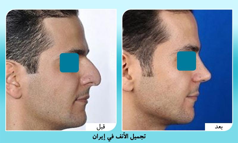 قبل وبعد عملية تجميل الانف للرجال في طهران مع د. حميد رضا حسناني
