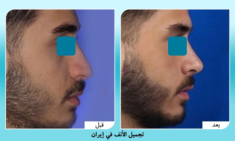 قبل وبعد تجميل الانف للرجال في ايران مع د. حميد رضا حسناني