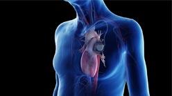 عملية تركيب جهاز تنظيم ضربات القلب في ايران