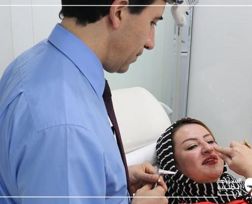 الفحص السريري قبل عملية تجميل الانف وانحراف الوتيرة ورفع الشفة في ايران
