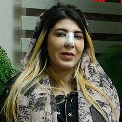 تجربة عملية الانف في ايران مع آريا مدتور