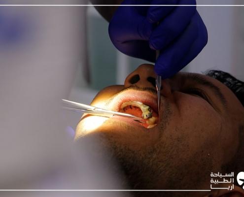 تجربة زراعة الاسنان في ايران لحسين من أستراليا