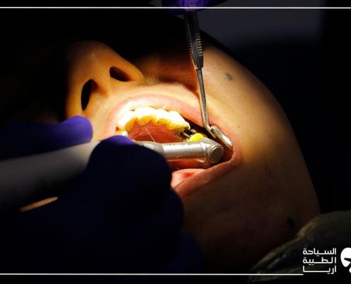تجربة زراعة الاسنان في ايران