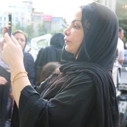 تجربة شد الوجه بعد إزالة البوتكس في ايران