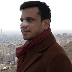 تجربة تجميل الانف ذي الجلد السميك في ايران