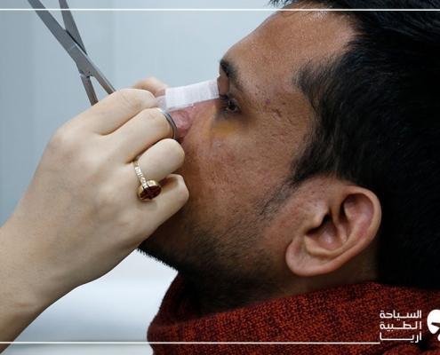 الموعد الاول بعد عملية تجميل الانفي في ايران