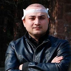 تجربة زراعة الشعر في ايران