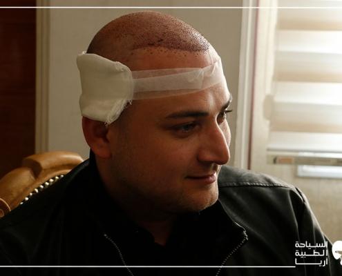 مريض أذربيجاني بعد زراعة الشعر في ايران