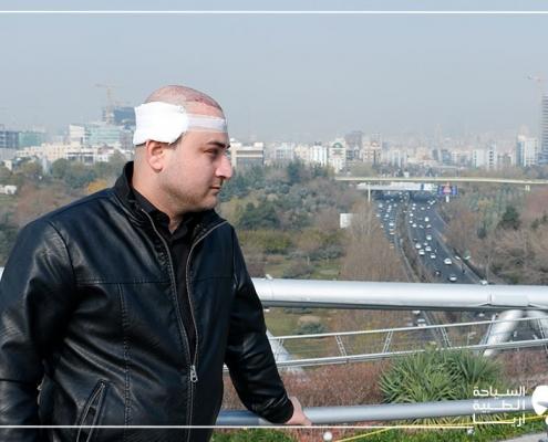 جولة في المدينة بعد زراعة الشعر في ايران