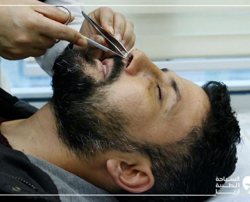 بعد عملية ترميم الانف في ايران
