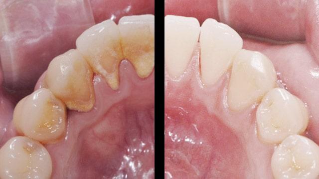 قبل وبعد تقليح الاسنان وكشط الجذر في ايران