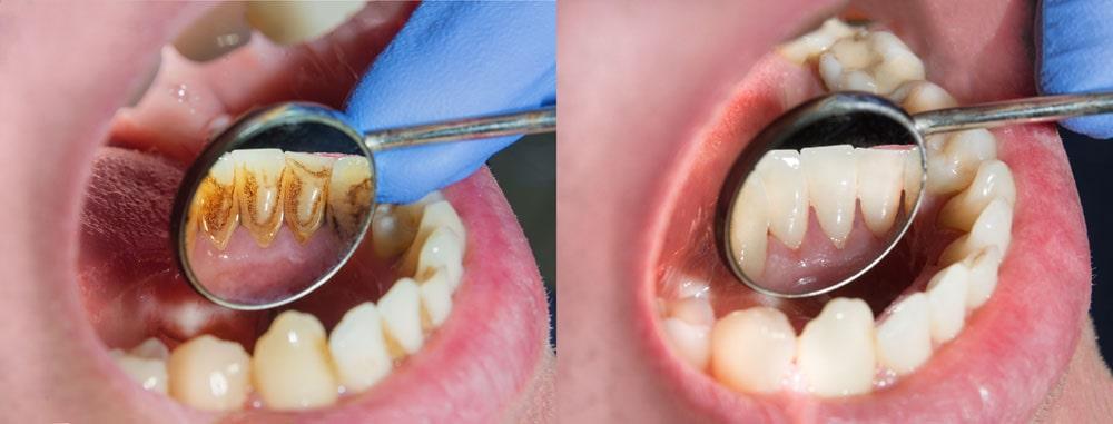 صورة قبل وبعد تقليح الاسنان وكشط الجذر في ايران