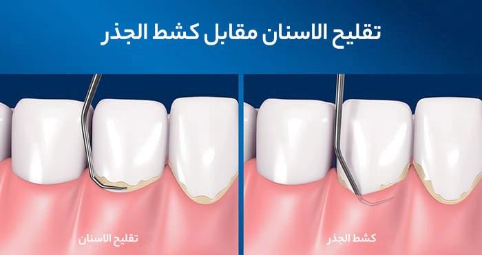 مقارنة بين تقليح الاسنان وكشط الجذر في ايران